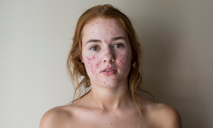 How Do I Know About Skin Cancer And Symptoms? post thumbnail image